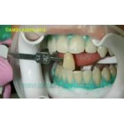 Видео: Лазерное отбеливание зубов