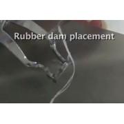 Видео: Раббердам