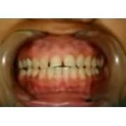 Видео: Коррекция десны стоматологическим лазером PICASSO