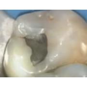 Видео: Стоматологический лазер PICASSO - стерилизация пульпы