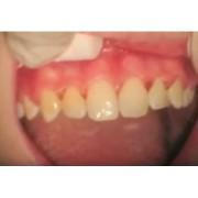 Видео: Стоматологический лазер PICASSO - после орто лечения
