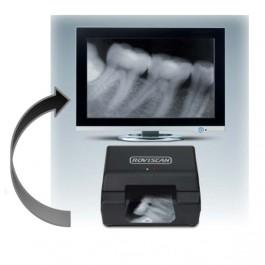 ROVISCAN мини сканер рентген снимков