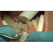 Видео: Клиническая чистка зубов с помощью соды Sylc