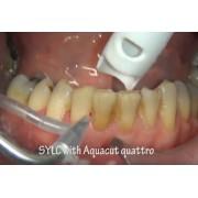 Видео: Полировка зубов содой Sylc