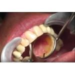 Видео: Работа эрбиевого лазера на зубных тканях. 2